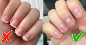 10 советов, как перестать грызть ногти раз и навсегда