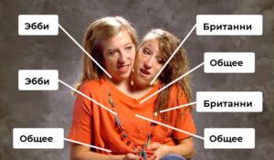 Как протекает жизнь сиамских близнецов, у которых одно тело