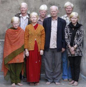 20 необычных генетических отклонений у людей