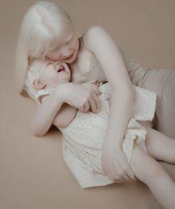 Сестры-альбиносы, родившиеся с разницей в 12 лет, восхищают Интернет своими фотографиями